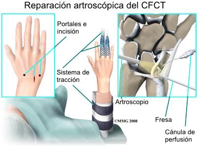 Lesiones del fibrocartílago triangular