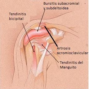 inyeccion de esteroides en la cadera