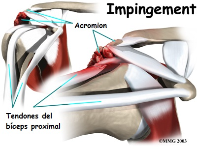 Tendinitis de la porcion larga del biceps
