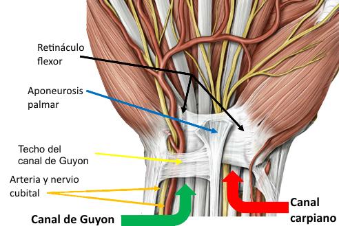 Síndrome del canal de Guyon