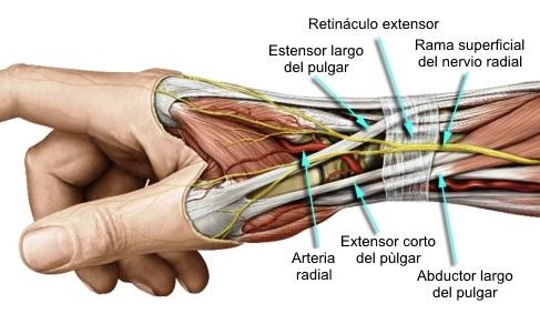 Atrapamiento del nervio radial
