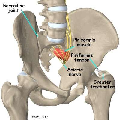 Vista anterior de la pelvis