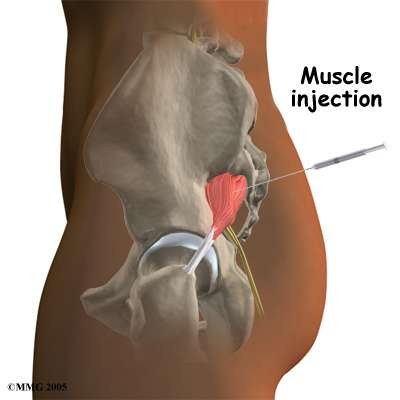 steroid glute injection pain
