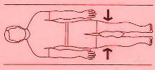 La operación el aumento del miembro en la longitud