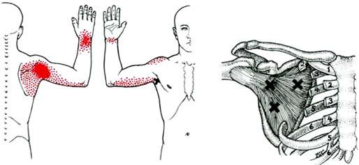 Tendinitis del subescapular