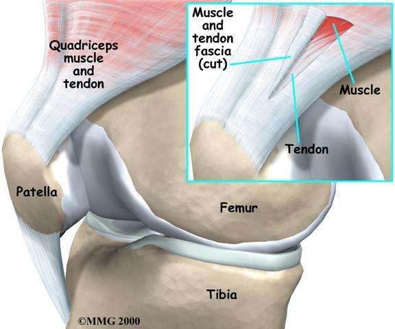 Anatomía Humana: Cadera y rodilla: TENDINITIS DE TENDÓN ROTULIANO