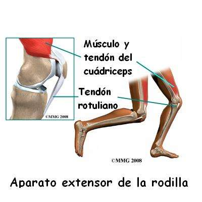 Tendinitis rotuliano