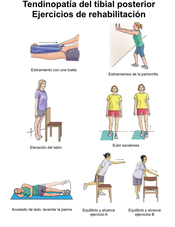 Tendinitis posterior